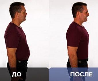 Ортопедическое белье activemax для мужчин - до и после