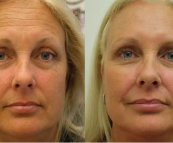 сыворотка Ageless до и после