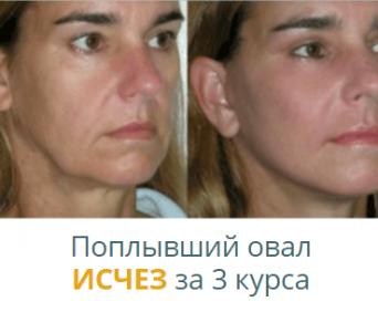 Революционный комплекс от морщин - коррекция овала лица