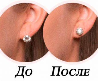 Зажим-корректор для ушей - до и после использования