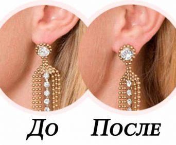 Зажим-корректор для ушей - эффективность ношения