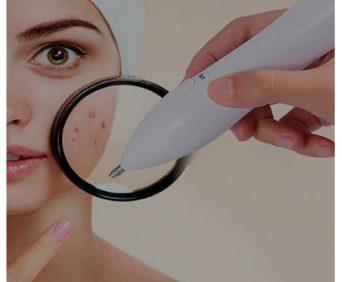Mole Removal - для удаления папиллом, родинок и тату на лице